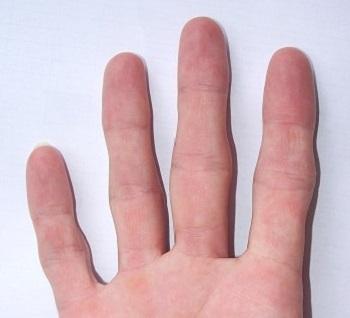 knotty_fingers