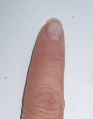 mental_fingers1-min