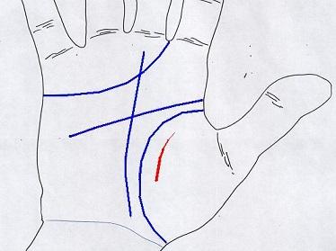 line1-4